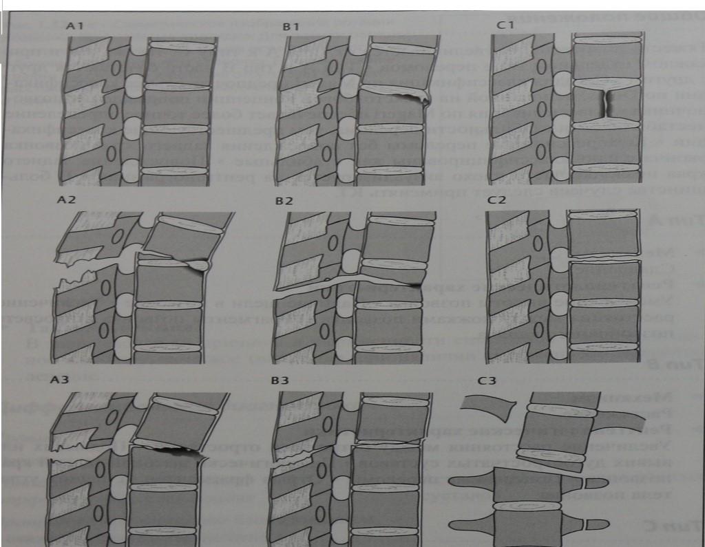 Снимки МРТ и КТ. Повреждения позвоночника: классификация no Magerl