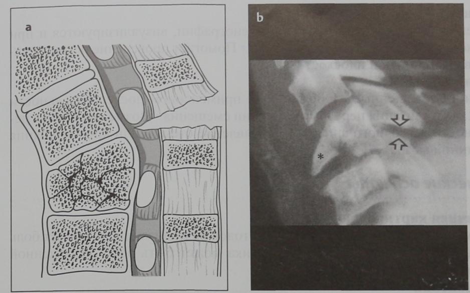 Снимки МРТ и КТ. Сгибательный перелом шейного отдела позвоночника