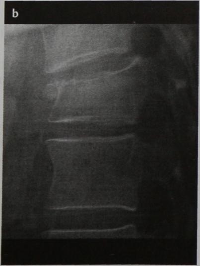 Снимки МРТ и КТ. Оскольчатый перелом позвоночника