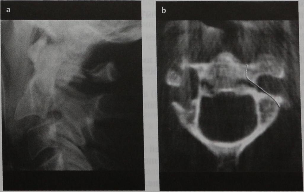 Снимки МРТ и КТ. Перелом повешенных
