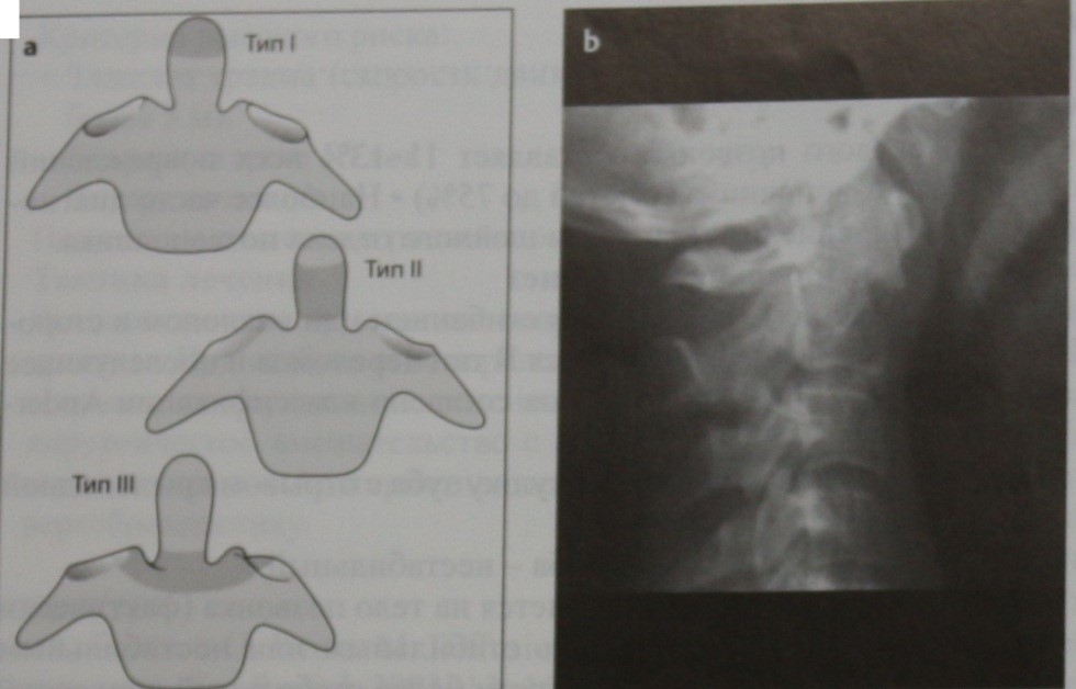 Снимки МРТ и КТ. Перелом зуба осевого позвонка