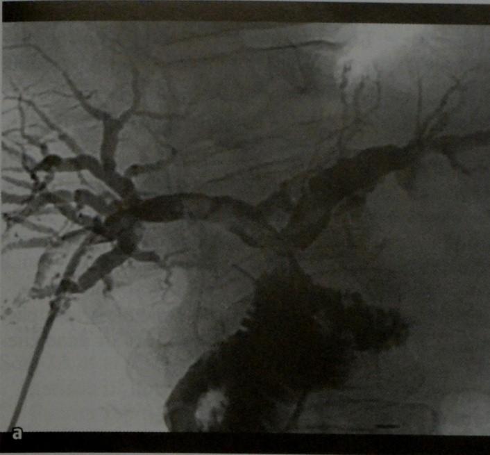 Снимки МРТ и КТ. Конкременты желчного пузыря