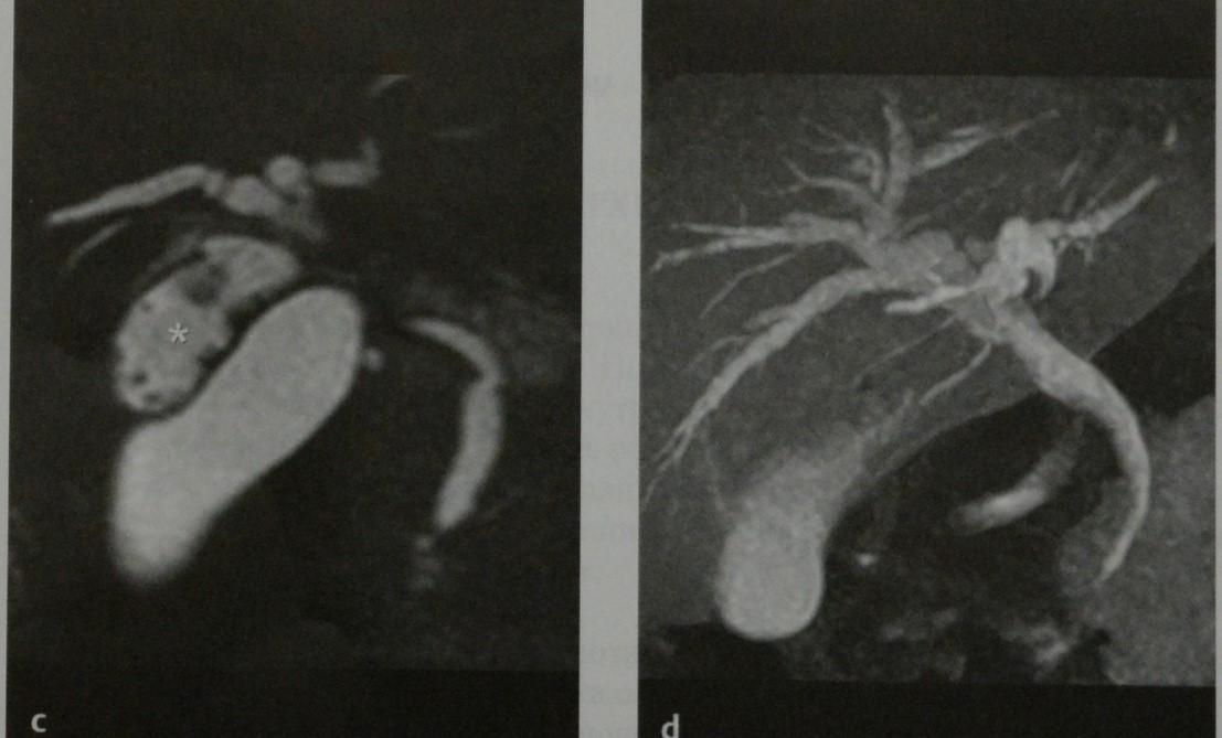 Снимки МРТ и КТ. Добавочный желчный пузырь