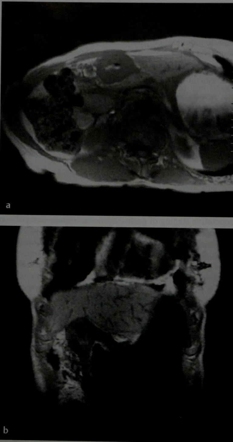 Снимки МРТ и КТ. Рак желудка