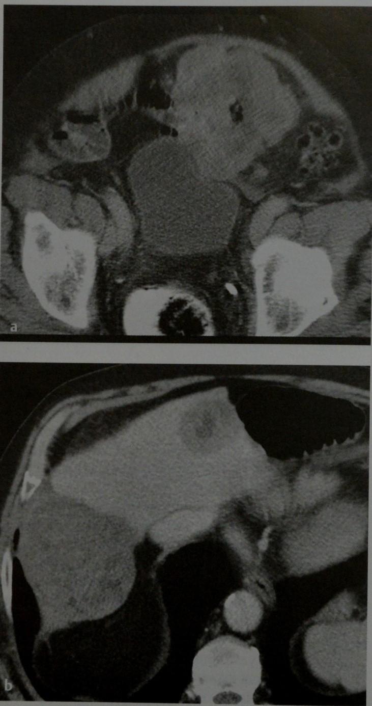 Снимки МРТ и КТ. Гастроинтестинальная стромальная опухоль (GIST)