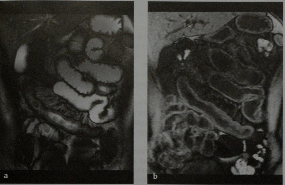 Снимки МРТ и КТ. Болезнь Крона