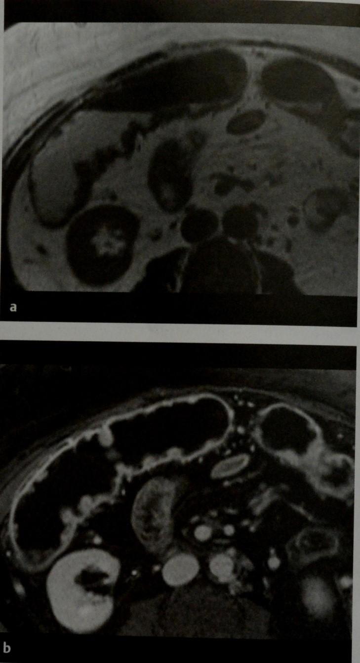 Снимки МРТ и КТ. Язвенный колит