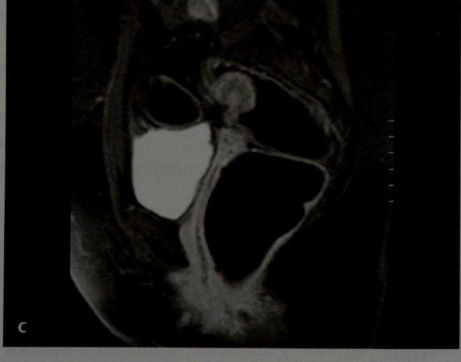 Снимки МРТ и КТ. Эндометриоз кишечника