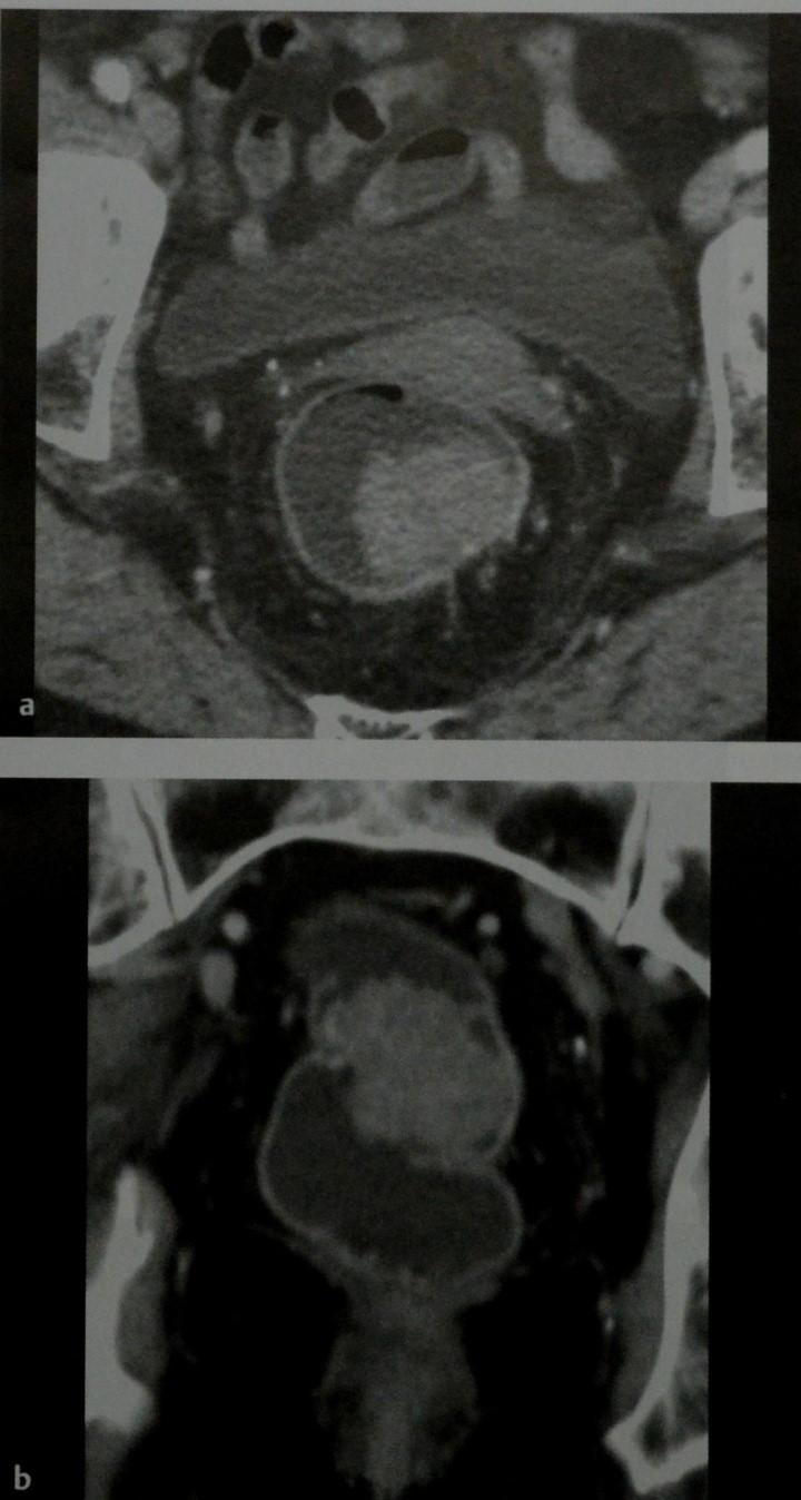 Снимки МРТ и КТ. Рак прямой кишки