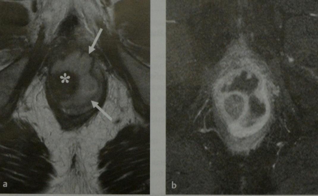 Снимки МРТ и КТ. Перианальные свищи и абсцессы