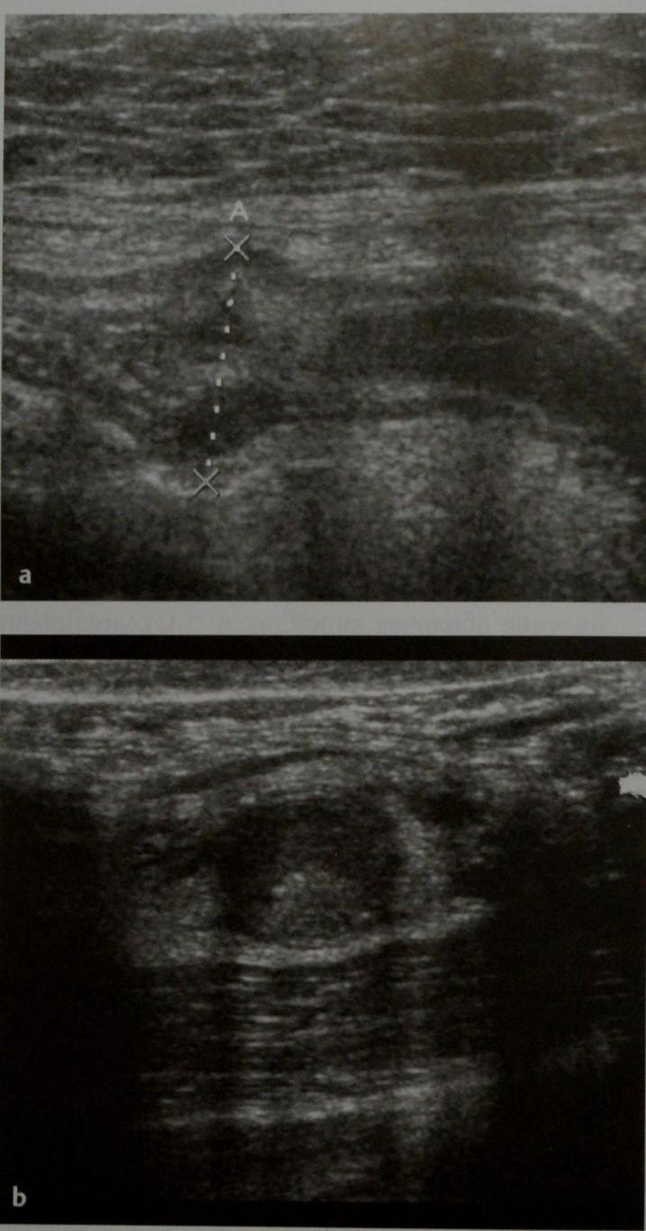 Снимки МРТ и КТ. Острый аппендицит