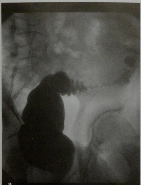 Снимки МРТ и КТ. Дивертикулит толстого кишечника