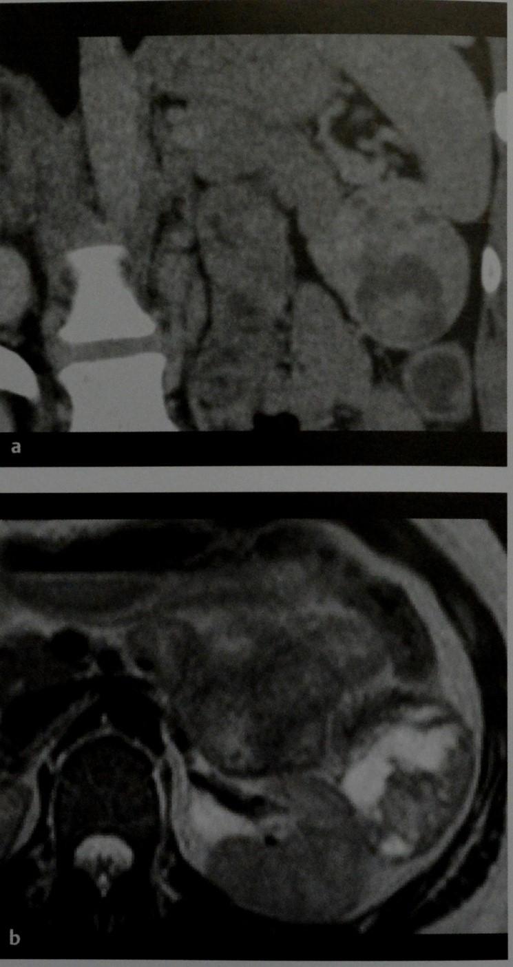 Снимки МРТ и КТ. Солидная псевдопапиллярная опухоль