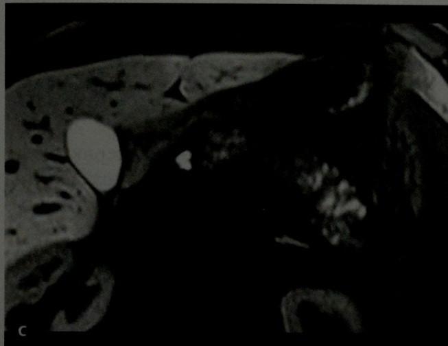 Снимки МРТ и КТ. Аутоиммунный панкреатит