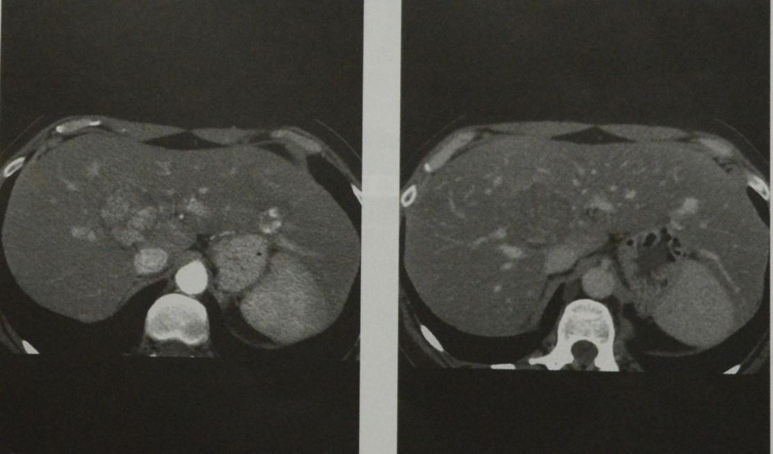 Снимки МРТ и КТ. Очаговая узловая гиперплазия