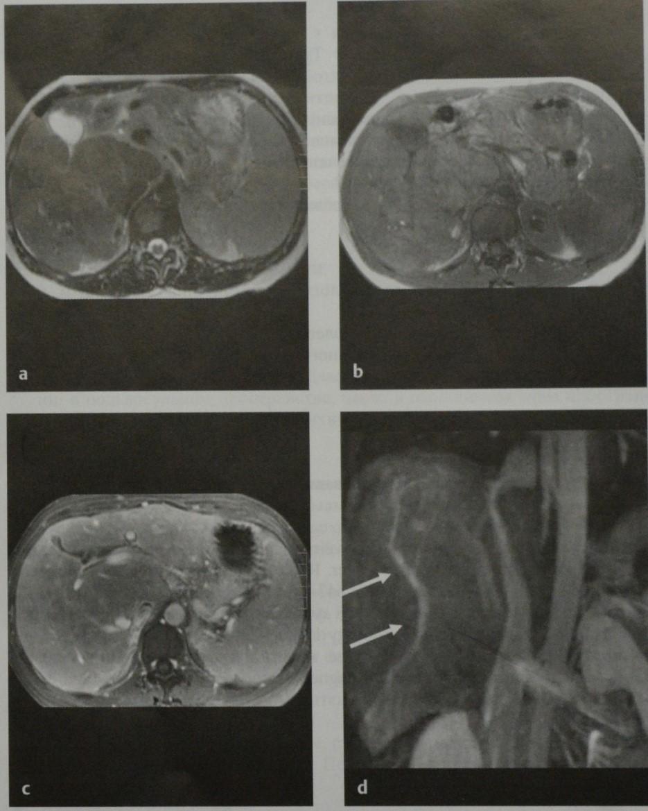 Снимки МРТ и КТ. Синдром Бадда-Киари
