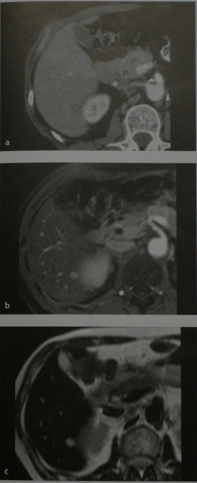 Снимки МРТ и КТ. Метастазы в печень