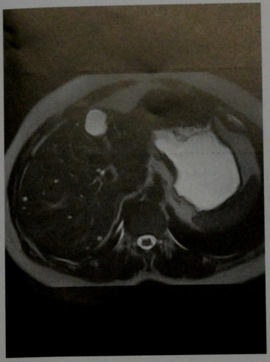 Снимки МРТ и КТ. Кисты печени