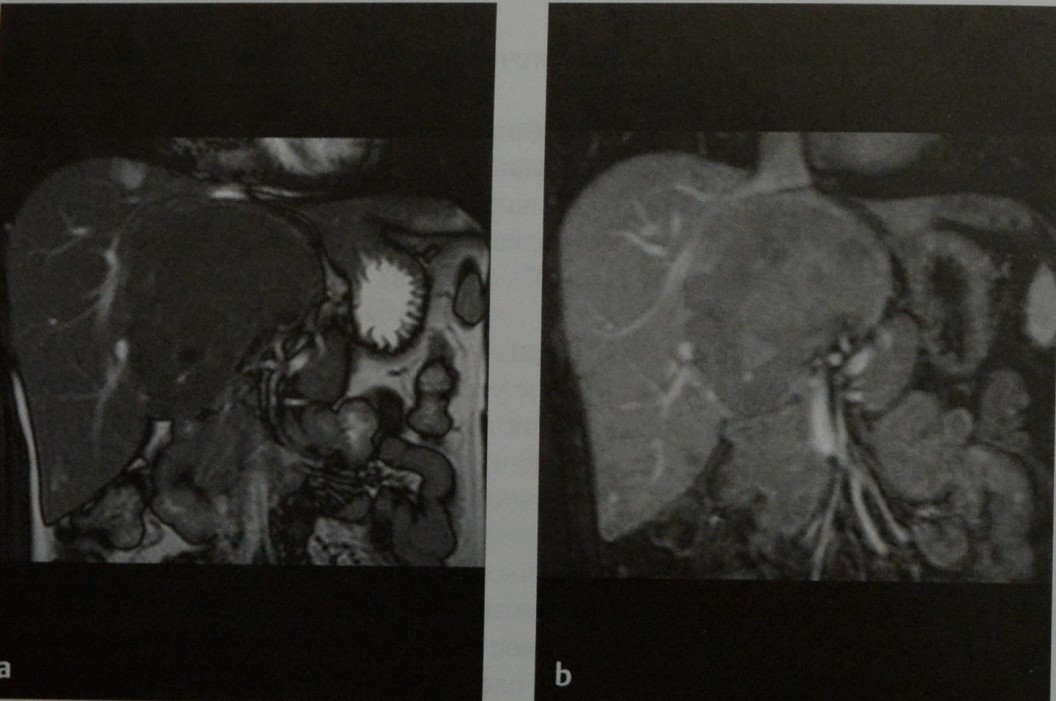 Снимки МРТ и КТ. Гепатоцеллюлярная аденома