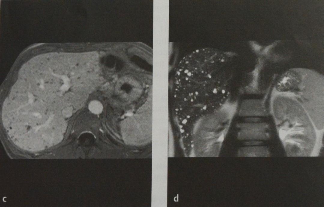 Снимки МРТ и КТ. Билиарные гамартомы (комплексы фон Мейенбурга)