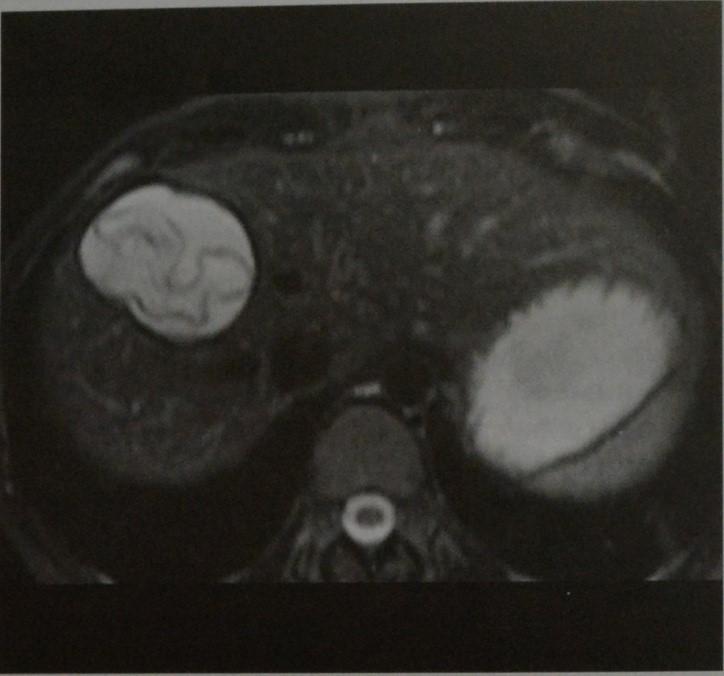 Снимки МРТ и КТ. Эхинококкоз