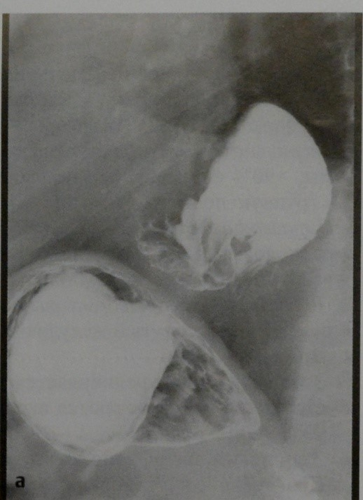Снимки МРТ и КТ. Грыжа пищеводного отверстия диафрагмы