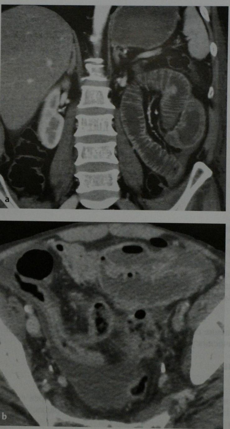 Снимки МРТ и КТ. Лимфома тонкого кишечника