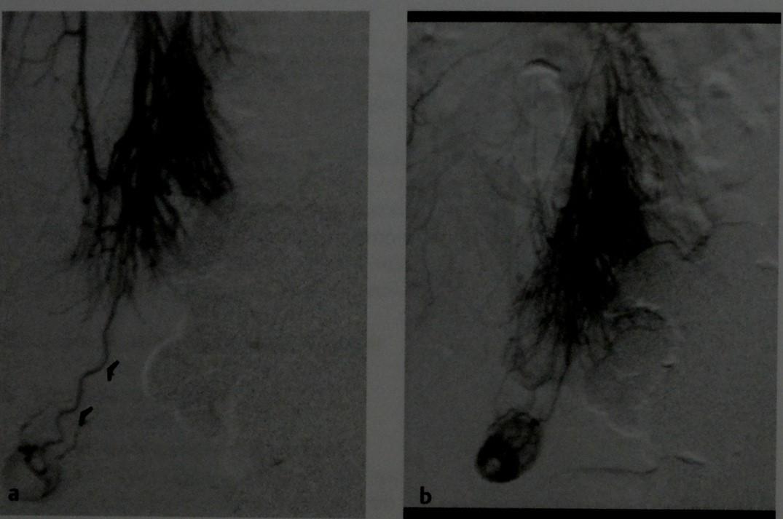 Снимки МРТ и КТ. Дивертикул Меккеля