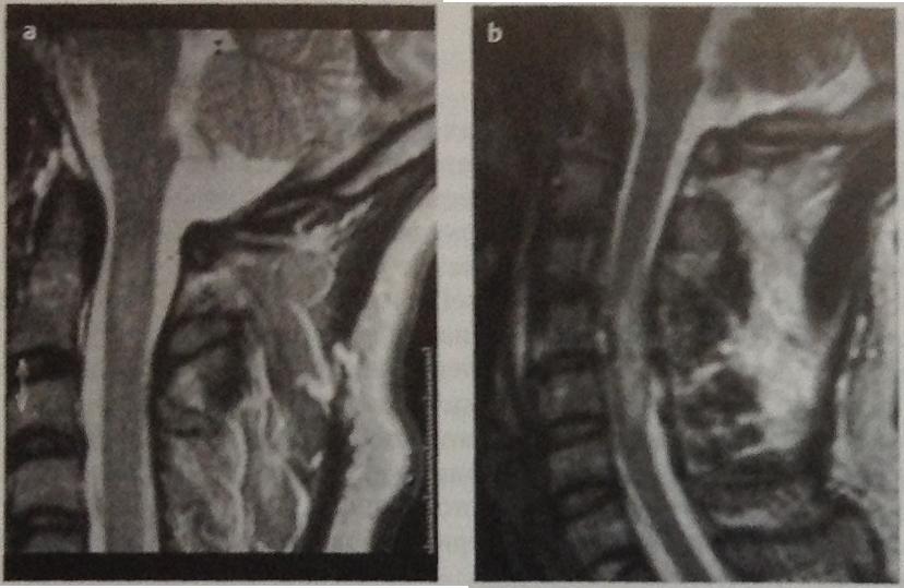 Снимки МРТ и КТ. Травмы спинного мозга