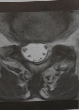 Снимки МРТ и КТ. Арахноидит