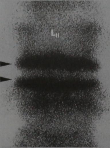 Снимки МРТ и КТ. Острый бактериальный спондилит