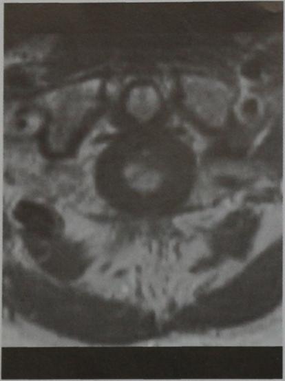 Снимки МРТ и КТ. Острый поперечный миелит