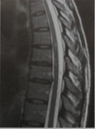 Снимки МРТ и КТ. Рассеянный склероз