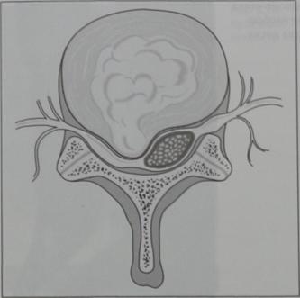 Снимки МРТ и КТ. Выпячивание, экструзия, протрузия и секвестрация