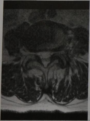 Снимки МРТ и КТ. Грыжа диска