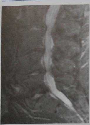 Снимки МРТ и КТ. Дегенеративный стеноз позвоночного канала