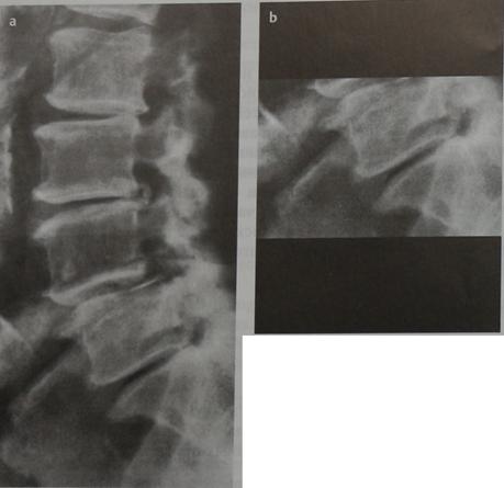 Снимки МРТ и КТ. Обызвествление межпозвоночных дисков