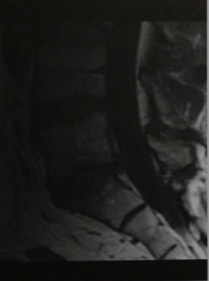 Снимки МРТ и КТ. Первая стадия остеохондроза