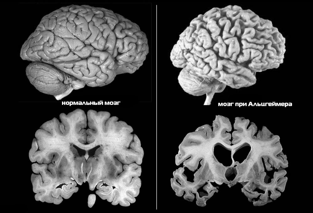 Болезнь Альцгеймера МРТ