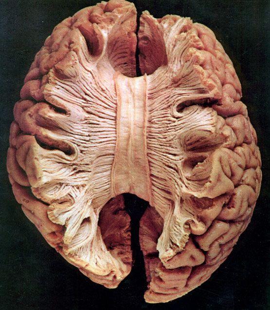Комплексное обследование головного мозга