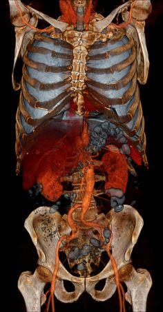 Компьютерная томография (МСКТ, КТ) мозга, брюшной полости, легких: показания и противопоказания