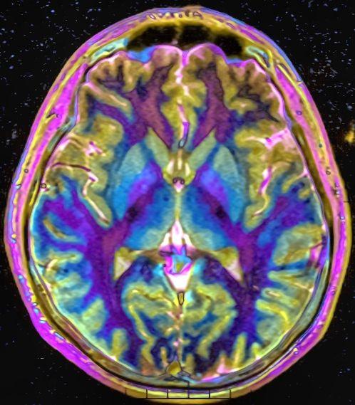 Показания к МРТ головы