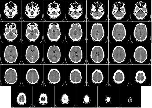 Расшифровка МРТ снимков