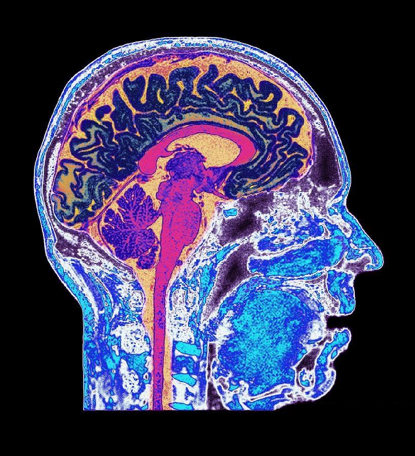 Устройство МРТ аппарата