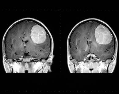 МРТ головы опухоль