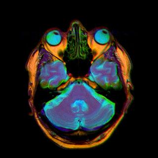 МРТ зрительного нерва