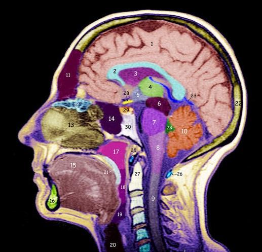 МРТ затылка что покажет
