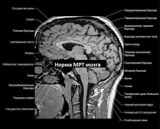 Норма МРТ головного мозга