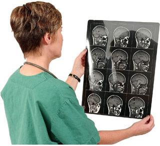 Процедура МРТ головы