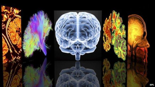 Виды специализированных МРТ мозга